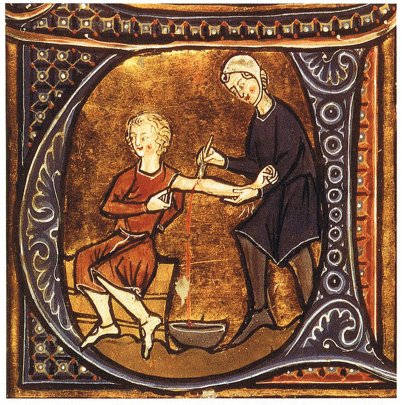 Medical Treatments of the Middle Ages 5