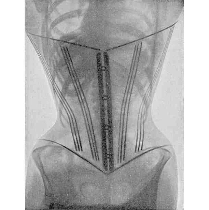 1908 corseted women 2