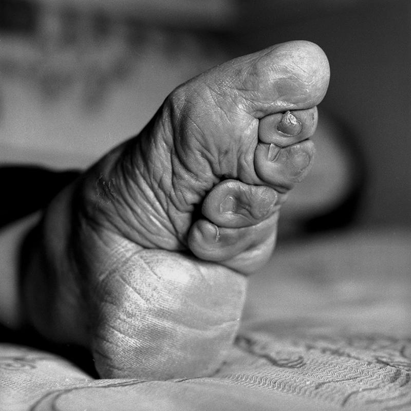 "A Dying Tradition: The Last Living Women With ""Lotus Feet"